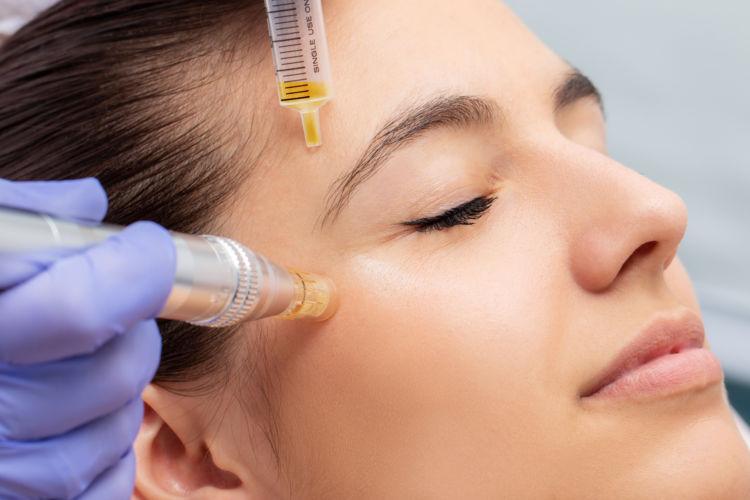 Microneedling (Mesotherapie)